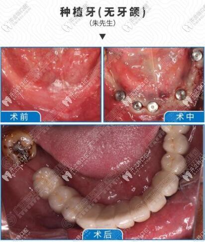 蓝天口腔医院种植牙案例