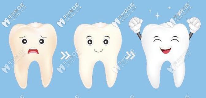 美白牙齿的方法有哪些?这有美牙五大方法效果及优势对比