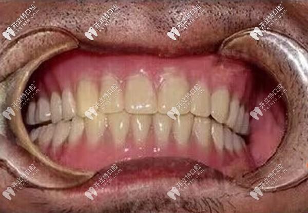 70岁无牙老人做全口种植牙真实感受:立得用种植牙技术靠谱