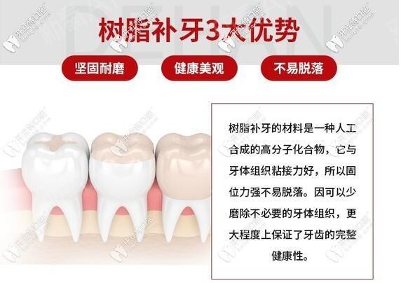 十大树脂补牙材料品牌排行榜,看清价格贵的和便宜的区别