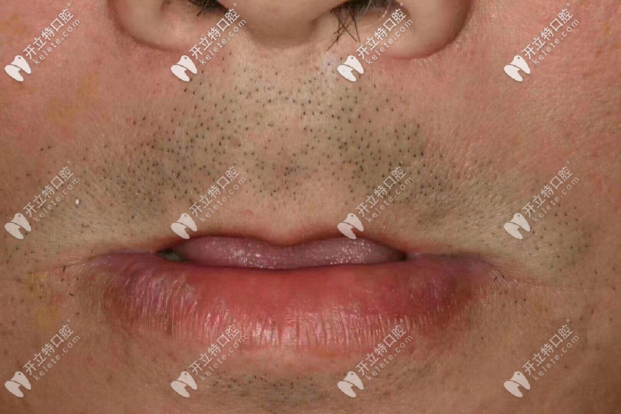 天津丽德卡尔口腔做allon4全口即刻负重种植牙的案例送上