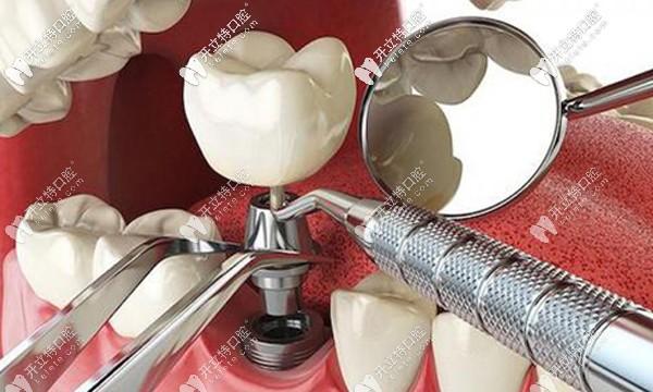 在大庆种牙多少钱一颗呢?大庆口腔种植牙价格表请惠存