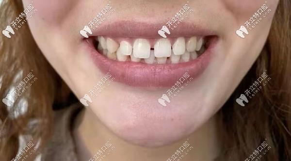 分享我门牙缝大做8颗美加全瓷牙贴面的案例感受,附效果图