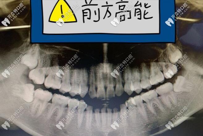 口腔CT片