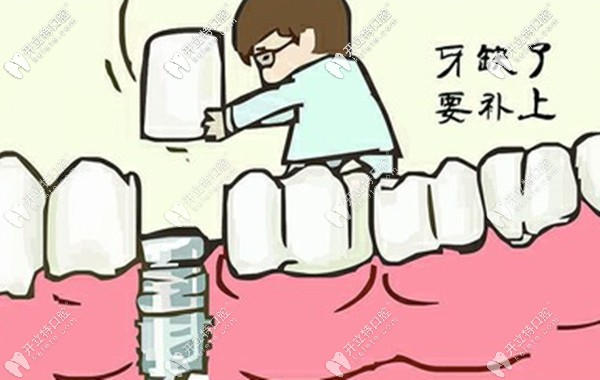 潮州地区种植牙大概多少钱一颗,韩系/欧美种牙系统价格全了