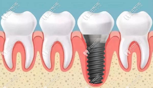 东营各口腔医院价格表已出,瞅瞅东营做种植牙一般多少钱