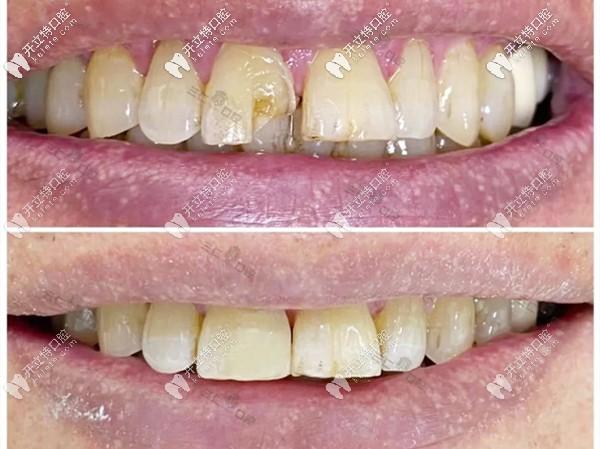 芭芭拉医生的门牙修复案例图