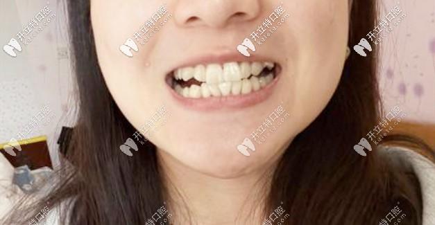 讲下牙齿拥挤的我戴上了金属自锁托槽矫正器的过程经历