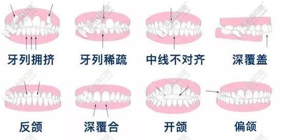 渭南牙科做牙齿矫正多少钱?想知道隐形和金属矫正的价格