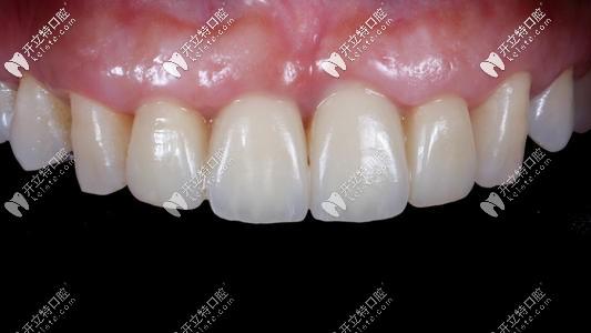 后悔史 门牙尽量不要做全瓷牙,我做全瓷牙8年后牙龈萎缩
