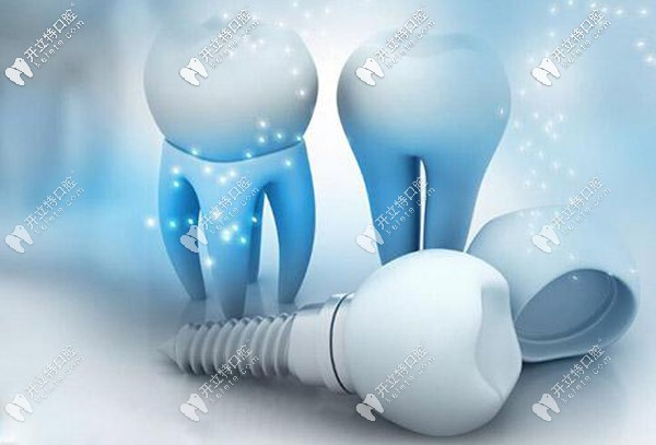 种植牙选纯钛和钛合金材料有啥区别,做核磁共振有影响吗