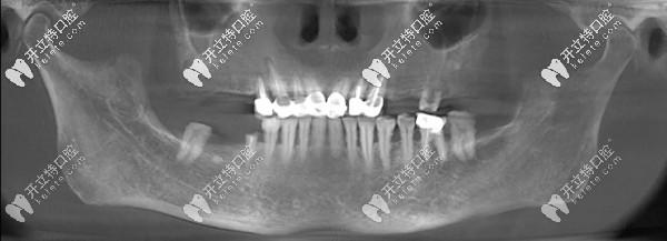 15分钟种3颗牙的王阿姨感言:德国生长因子种植牙技术真牛
