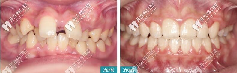 牙齿错乱、牙列拥挤矫正案例