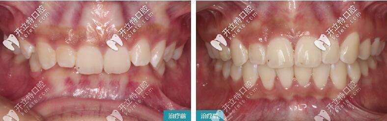 牙齿深覆盖矫正