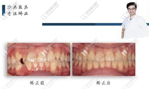 网友评价:牙祖口腔沙米医生做隐适美牙齿矫正挺靠谱!