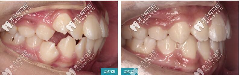 侧面凸嘴、龅牙矫正案例