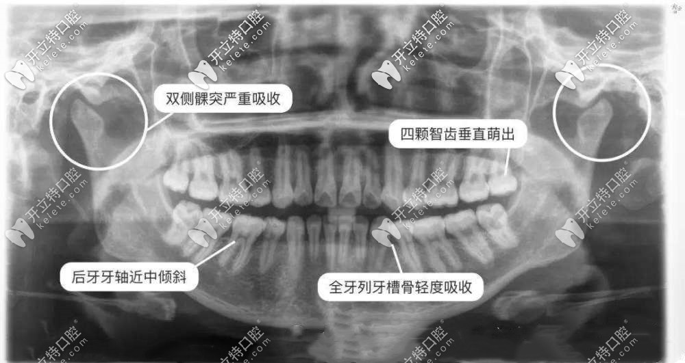 矫正牙齿/拔牙为啥要拍片?拍牙片辐射危害有多大