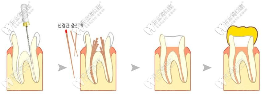 根管治疗步骤过程及动画视频图解,看根管治疗4次哪次比较痛