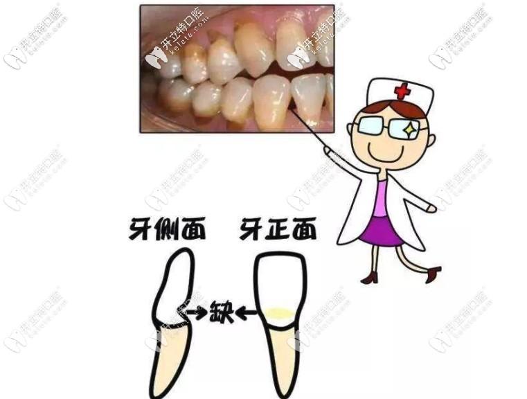 其实很多楔状缺损都是刷牙导致的,早发现早治疗哦~