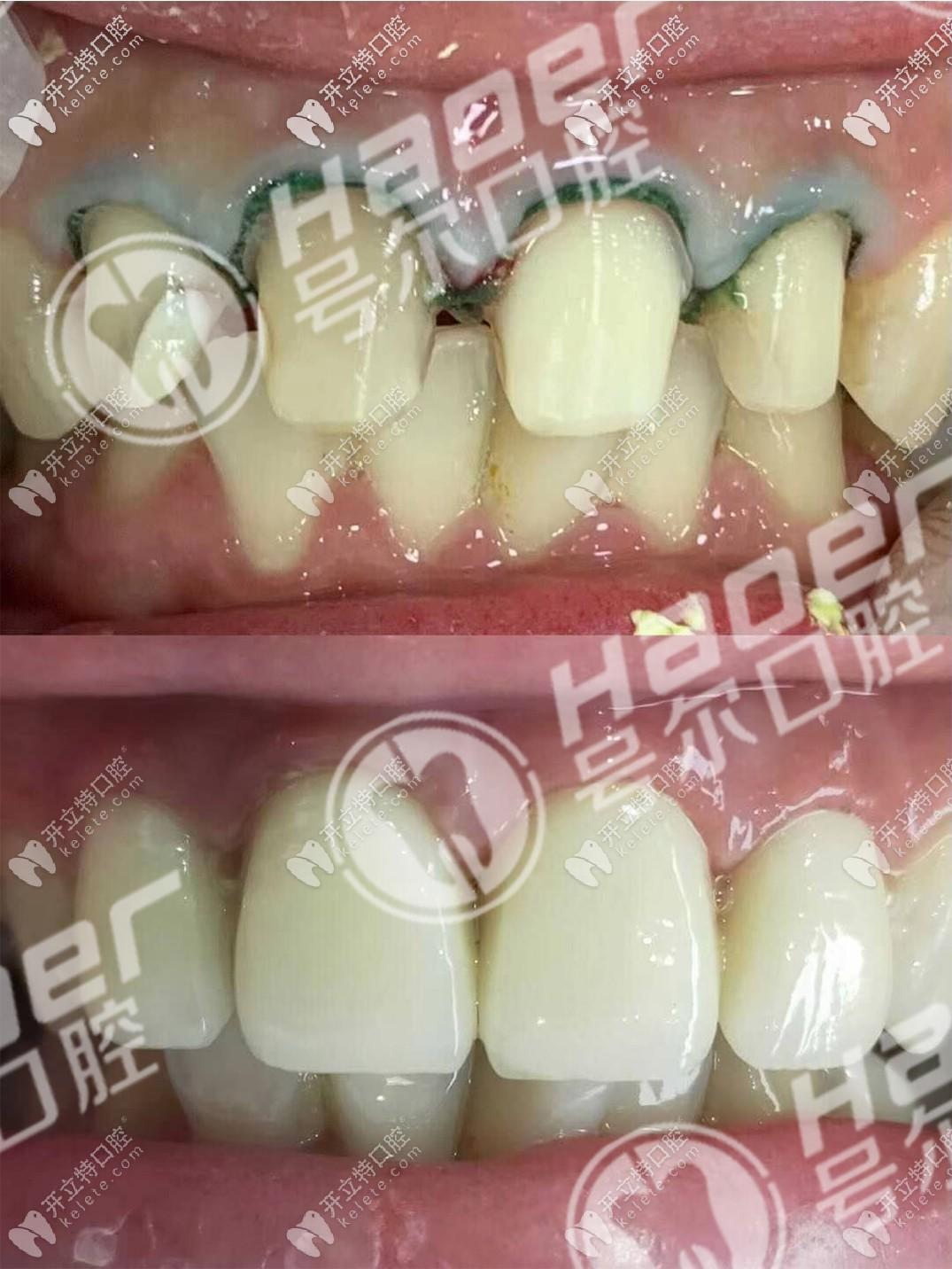 说不痛苦是假的,谈谈我烤瓷牙用5年后拆了换全瓷牙过程!