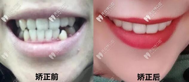 正畸案例:妹妹中线不齐+脸歪做的金属自锁矫正后图片分享