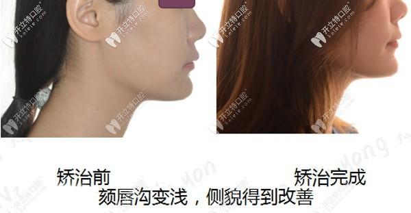 从隐适美矫正骨性深覆合的过程看,前后脸型变化确实不小