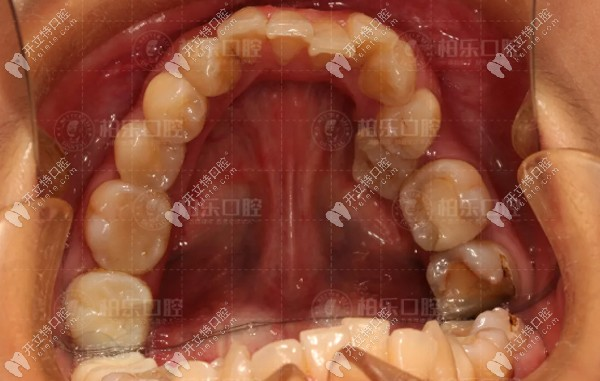 我前牙深覆合戴陶瓷半隐形牙套矫正案例~附脸型变化效果图