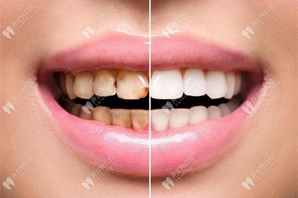 网红推荐的美白牙贴和瓷贴面美白牙齿的效果比怎么样?