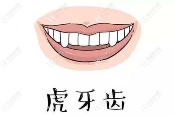 西安圣贝口腔正畸好不好?虎牙做金属矫正后的效果令人惊艳