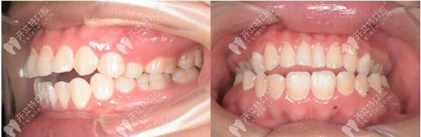 开颌在西安鼎秀齿科做的金属自锁牙齿矫正来评价下怎么样