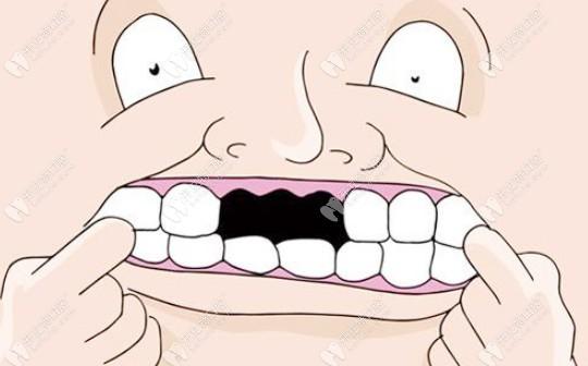 种牙如种树?种一颗树需要土壤,种牙需要牙槽骨!