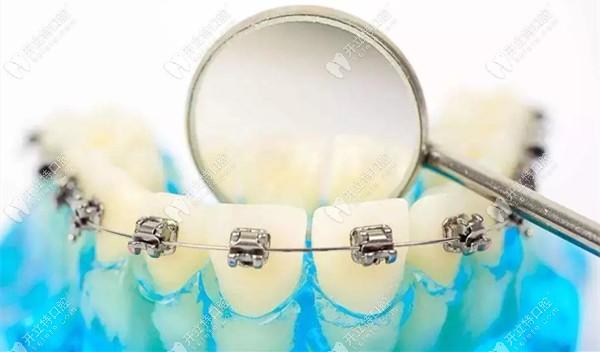 广州三仁口腔做青少年牙齿矫正的费用在番禺区属于超低价