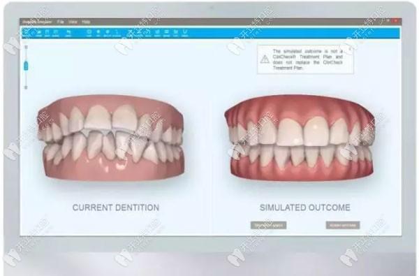 隐形牙齿矫正的3D动画模拟图
