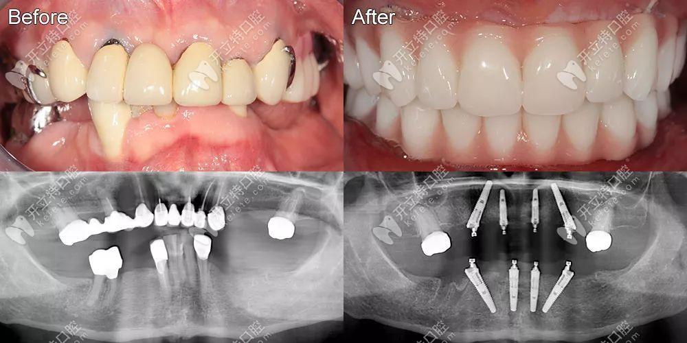 即刻负重4颗和6颗的真实区别已发放,它的优势是当天戴牙冠