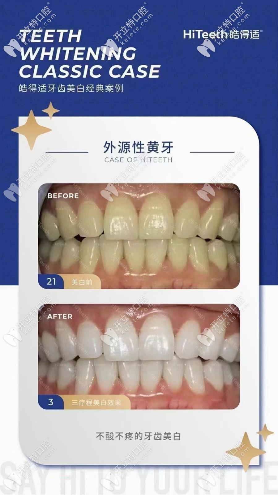 惊喜:外源性黄牙做了美国皓得适美白竟然白了4个色阶!