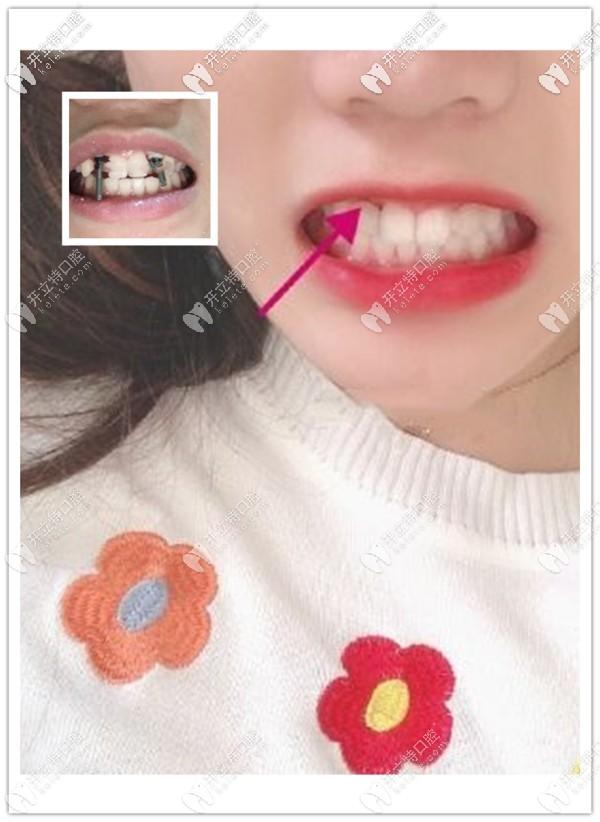 黄泽源医生给缺两颗侧切牙女孩用德国ICX种植体修复成功啦
