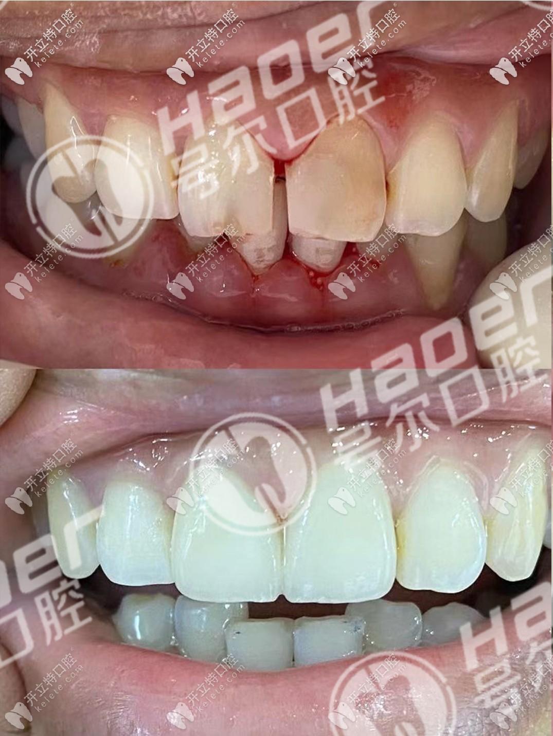 门牙做根管治疗两年后才选择戴全瓷牙冠修复,效果还挺赞