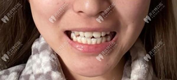 整牙日记:记录我牙齿中线不齐戴钢丝牙套矫正牙齿的经历