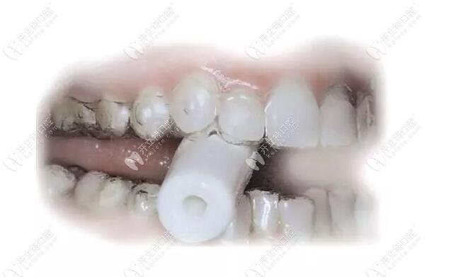 戴正雅隐形矫正牙套是每天都要咬胶吗?注意使用的正确方法