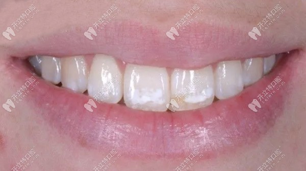 渗透树脂治疗氟斑牙的效果怎么样,请看案例