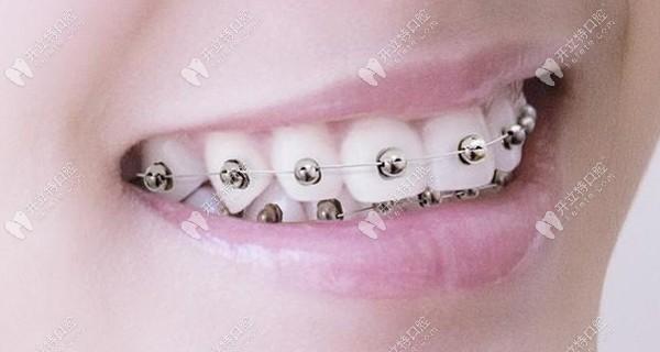 广州私立连锁牙科做球面金属自锁牙套的优惠价格实力圈粉~