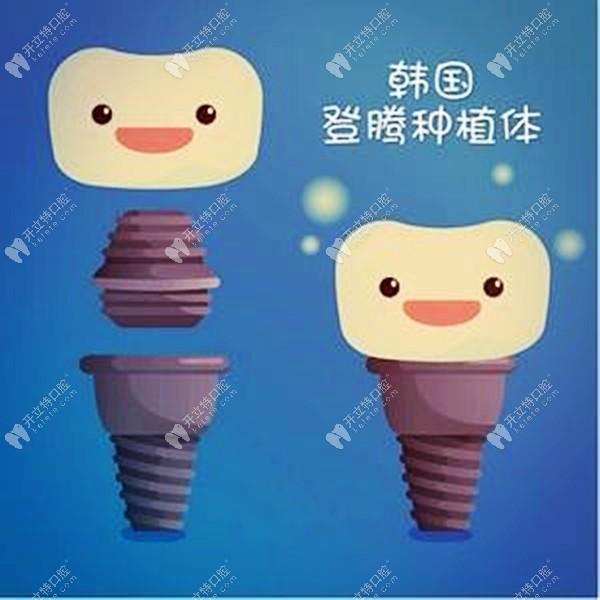 昆明做韩国纯钛登腾种植牙补贴价2399元一颗,也太便宜了吧