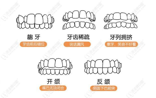 普通钢牙套针对的症状