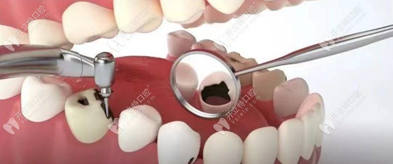 蛀牙不严重为什么要及时补牙,窝沟龋黑线是否要补牙呢?