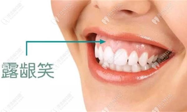 笑露牙龈的照片