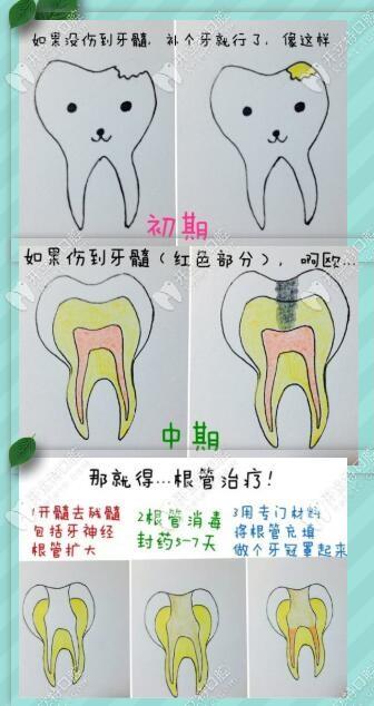 蛀牙不同程度的治疗方式