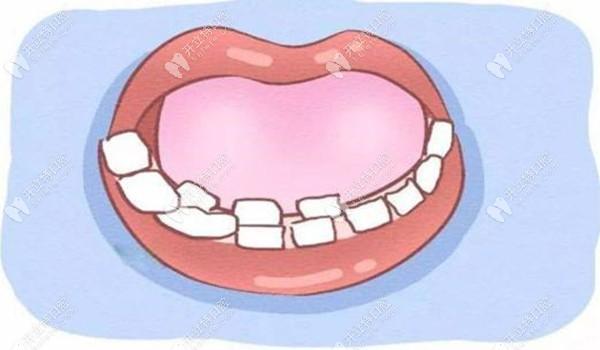 孩子长双排牙是什么原因导致的呢?什么时候拔除比较好?