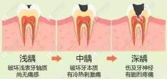 蛀牙发展程度
