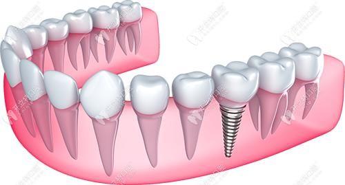 德国种植牙结构示意