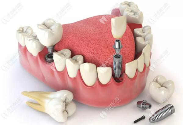 种植牙补贴的申领规则